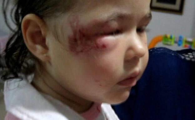 ילדה התעוררה חבולה בפניה בגן ילדים - מצלמות אבטחה לגן ילדים